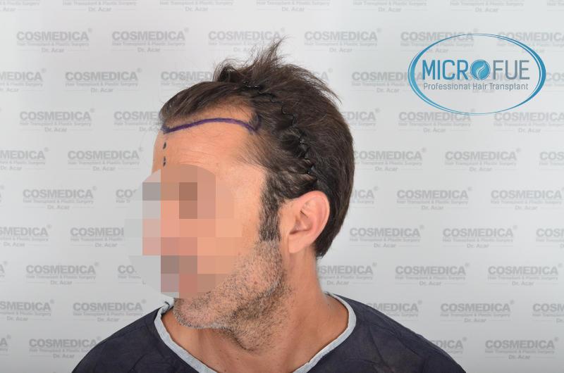 Trasplante de pelo en turquía - Resultados con comparativa antes y después