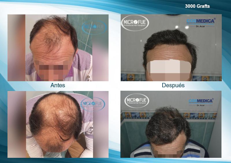 evolucion trasplante capilar turquia