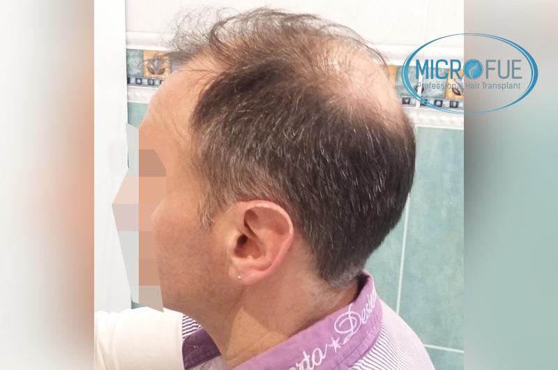 Trasplante capilar - Pacientes de microfue