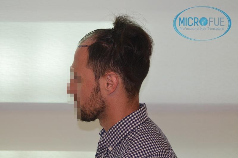 Evolución de trasplante de pelo en entradas