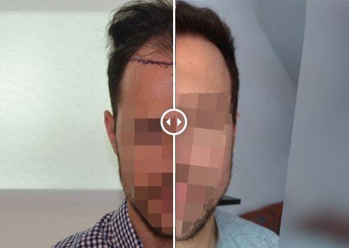 Trasplante de pelo – Galería 72