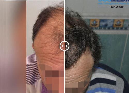 Trasplante de pelo – Galería 73