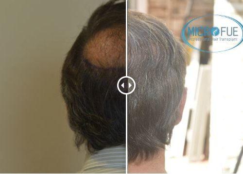 Trasplante de pelo – Galería 74