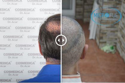 Trasplante de pelo – Galería 75