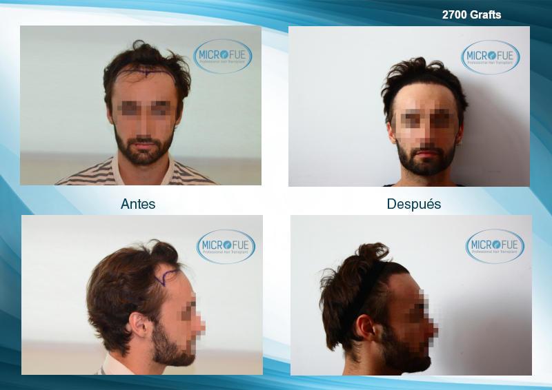 resultados de trasplante de pelo comparacion antes y despues