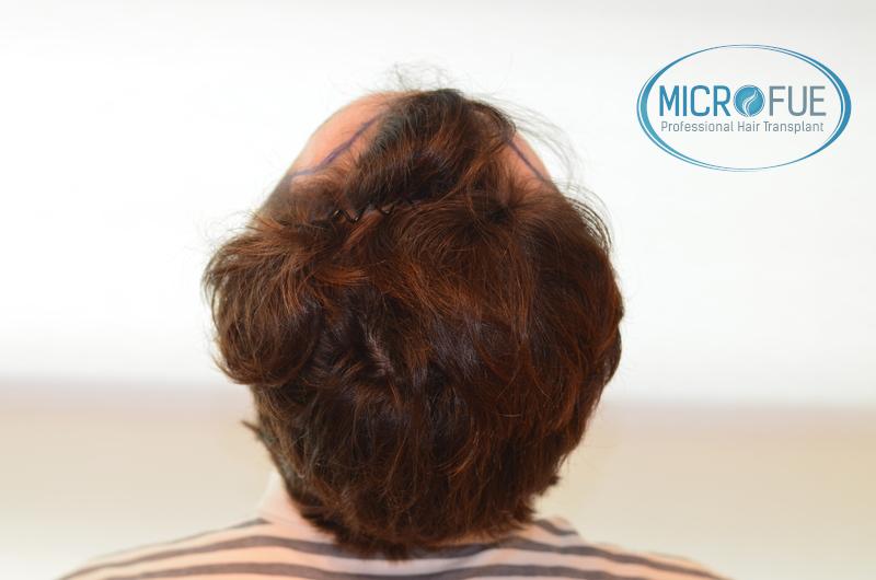 Evolución de trasplante de pelo, comparación antes y después
