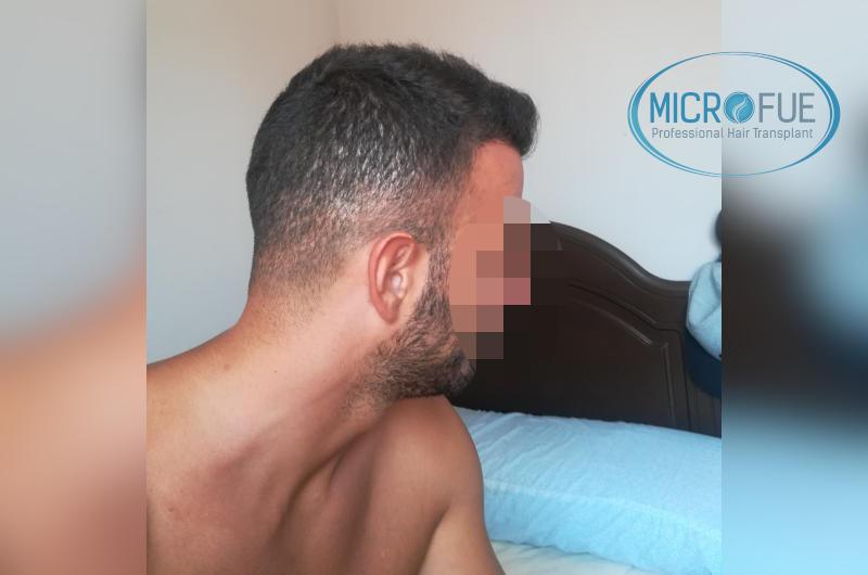 Trasplante de pelo - Evolución después de 9 meses