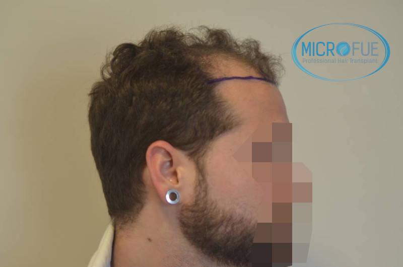 microfue antes de la operación