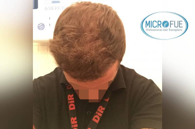 resultados con microfue después de 6 meses
