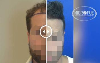 Trasplante de pelo – Galería 77