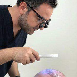 por que ir a turquia para trasplante de pelo