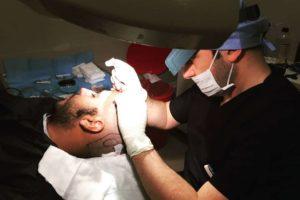 por que ir a turquia para un microinjerto capilar