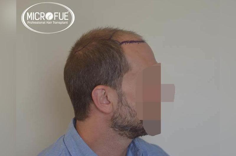 Resultados antes y despues de trasplante capilar en turquia