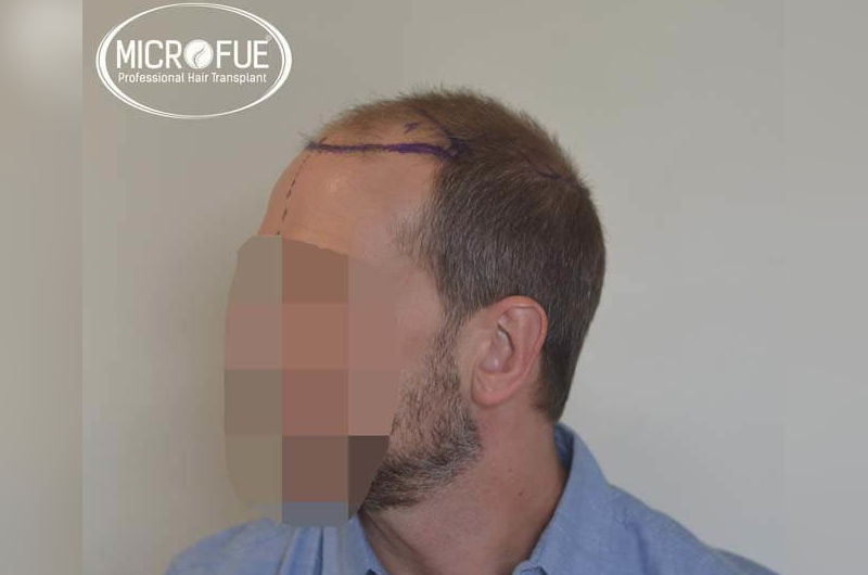 Resultados antes y despues de injerto de pelo en turquia