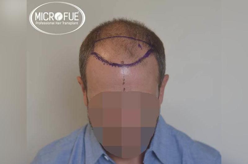 Resultados antes y despues de microinjerto de pelo en turquia