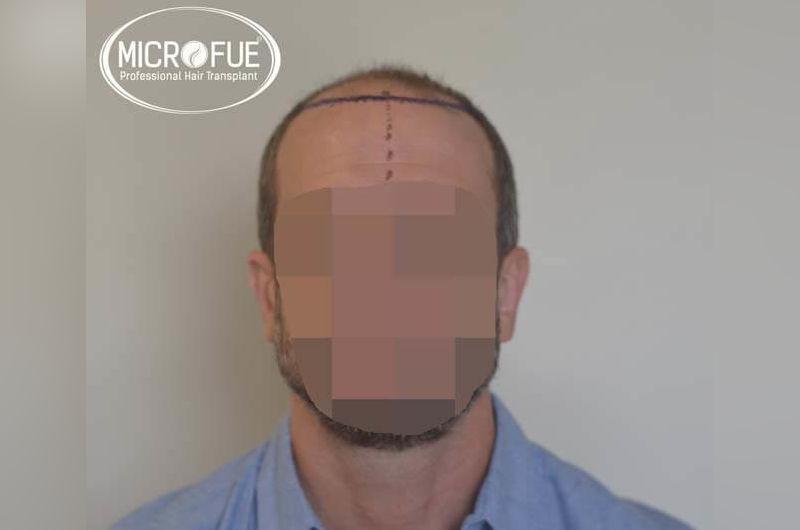 Resultados antes y despues de injerto capilar en turquia