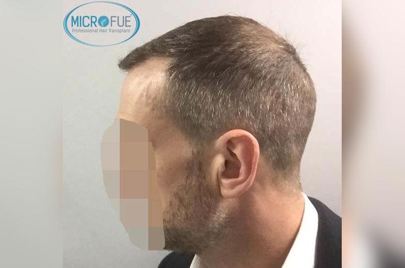 Resultados antes y despues de microinjerto capilar en turquia