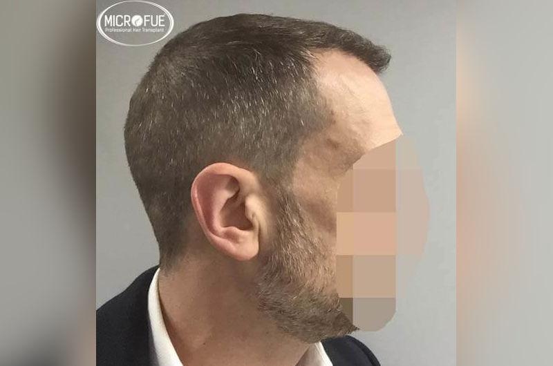 Resultados antes y despues de microinjertoe de pelo en turquia