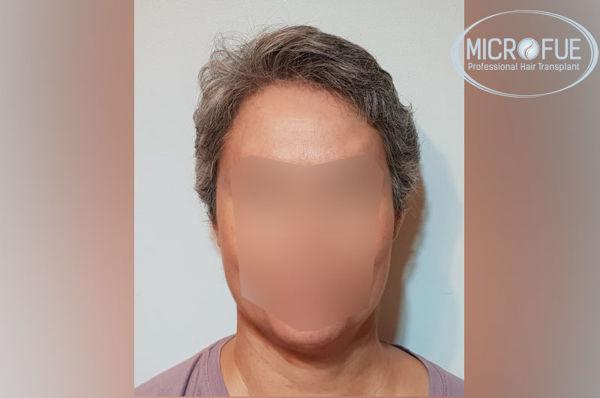 Trasplante capilar en mujeres - Antes y después