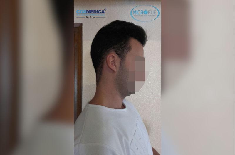 antes-y-despues-trasplante-capilar-en-turquia