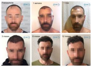 fotos evolución trasplante capilar por meses