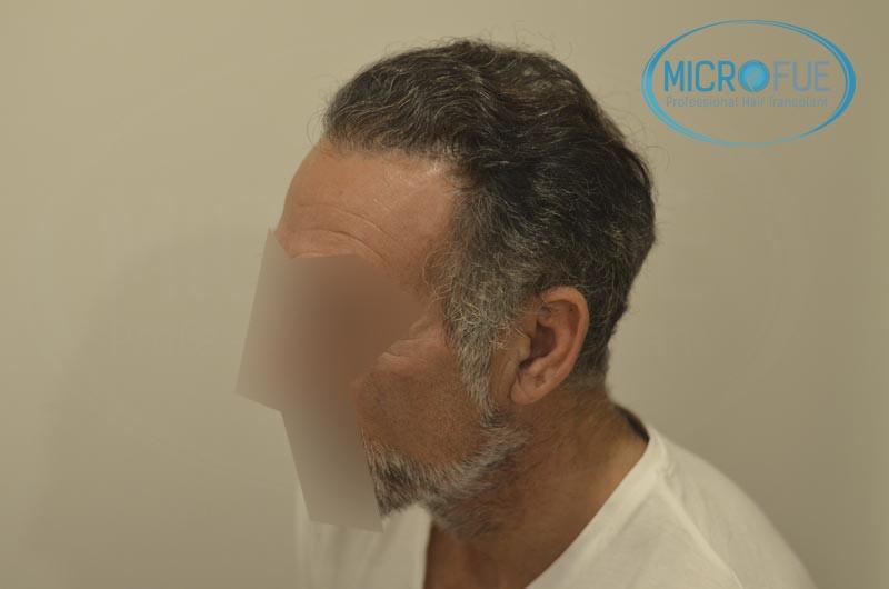 trasplante capilar en turquia antes y despues