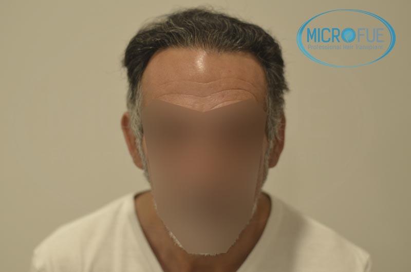 trasplante de pelo en turquia antes y despues
