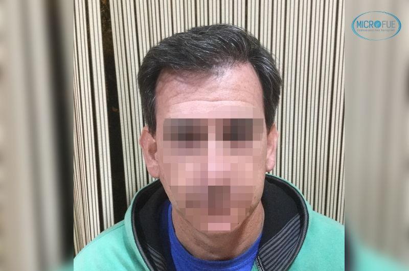 resultados de trasplante de pelo en Turquía con Microfue