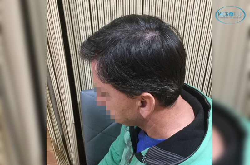 resultados trasplante capilar en Estambul tras un año