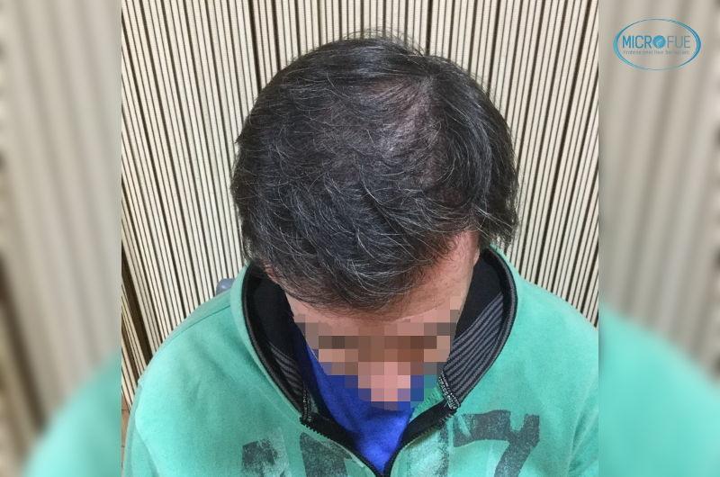trasplante de pelo en Turquía muy buenos resultados