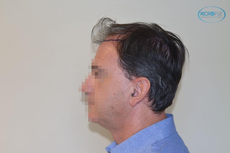 trasplante de pelo en Estambul fotografía lateral de la cabeza