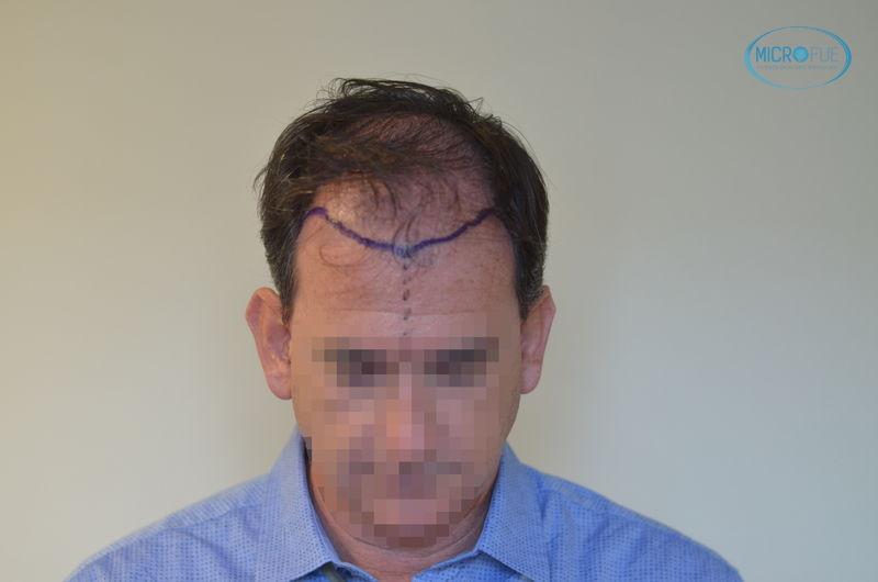 trasplante capilar en Turquía parte frontal