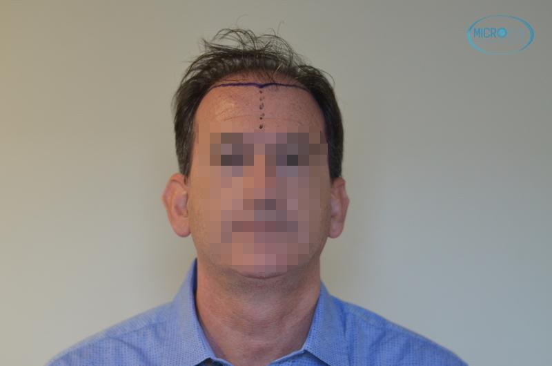 trasplante de pelo en Turquía con Microfue entradas y parte frontal de la cabeza