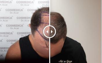 Trasplante Capilar – Antes y Después – 79