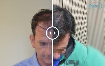 Trasplante Capilar – Antes y Después – 80