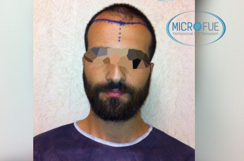 trasplante-de-pelo-en-turquia-opiniones-microfue-1