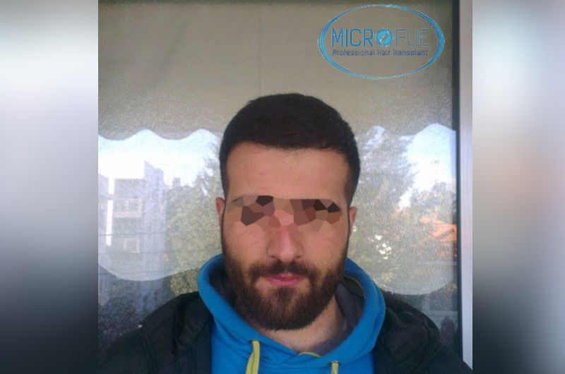 trasplante-de-pelo-en-turquia-opiniones-microfue-2
