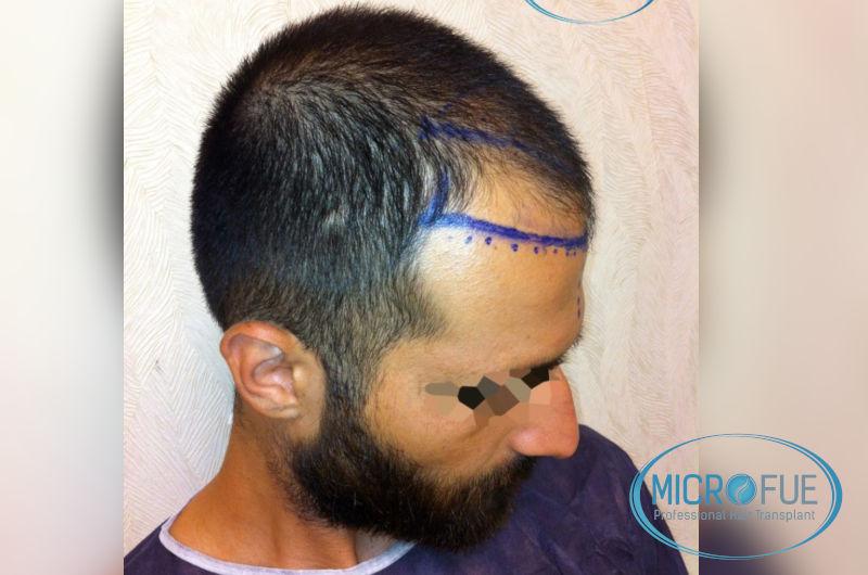 trasplante-de-pelo-en-turquia-opiniones-microfue-3
