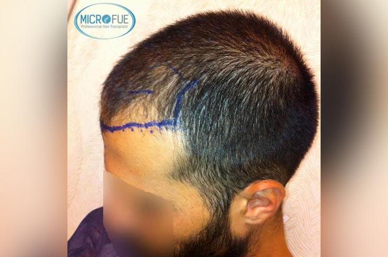 trasplante-de-pelo-en-turquia-opiniones-microfue-6