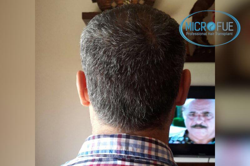 Trasplante de pelo entradas y coronillas
