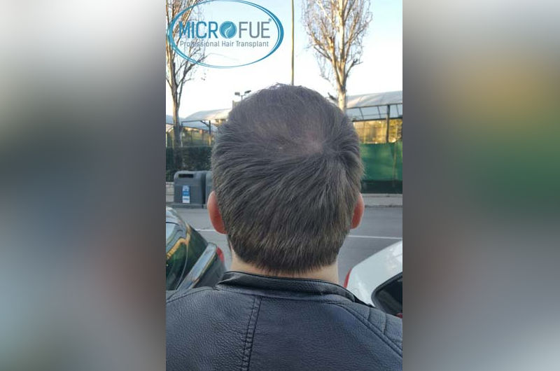 Trasplante de pelo en Turquía después de 6 meses