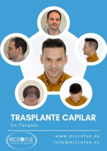 microfue - por que turquia trasplante capilar
