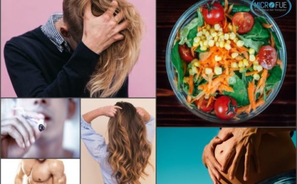 Grupos poblacionales más vulnerables a padecer alopecia