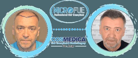 Pantic - Antes y después de su trasplante capilar con microfue.es