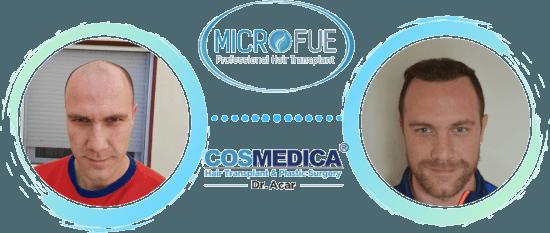 Implante capilar después de 1 año - microfue.es