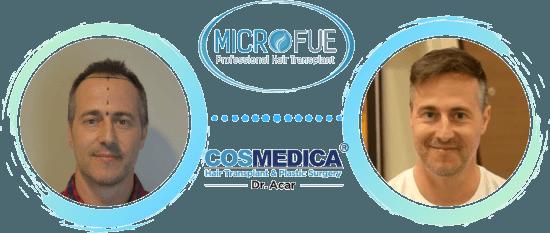 opinion pacientes microfue