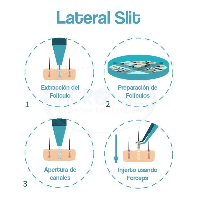 Infografía injerto capilar técnica Lateral slit