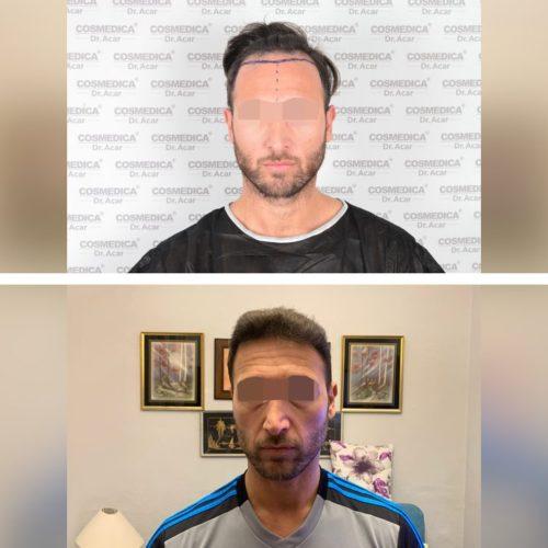 Trasplante de pelo – Galería 81