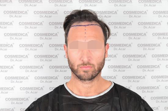 resultados de trasplante capilar turquia tecnica dhi frontal