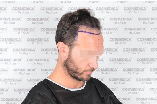 resultados de trasplante capilar turquia tecnica dhi lado